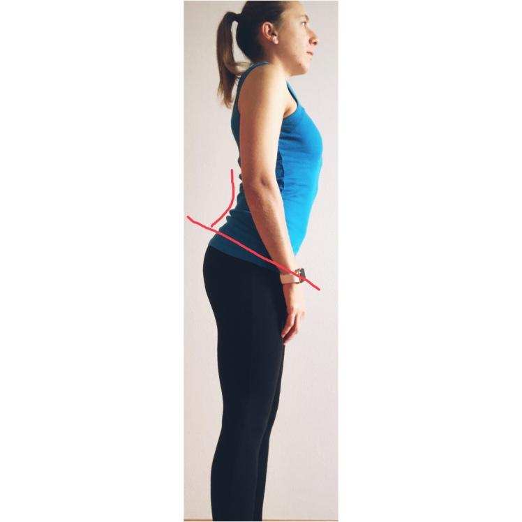 Balanced Posture, posture, bad posture, correct posture, bad posture, physiotherapy, physical therapy, fisioterapia, fisio, the physio formula, physioformula, thephysioformula, salute, health,wellbeing, fitness, wellness, postura, hyperlordotic, hyperlordosis, anterior pelvic tilt, iperlordosi