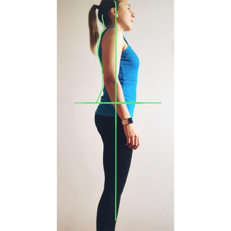 Balanced Posture, posture, bad posture, correct posture, bad posture, physiotherapy, physical therapy, fisioterapia, fisio, the physio formula, physioformula, thephysioformula, salute, health,wellbeing, fitness, wellness, postura