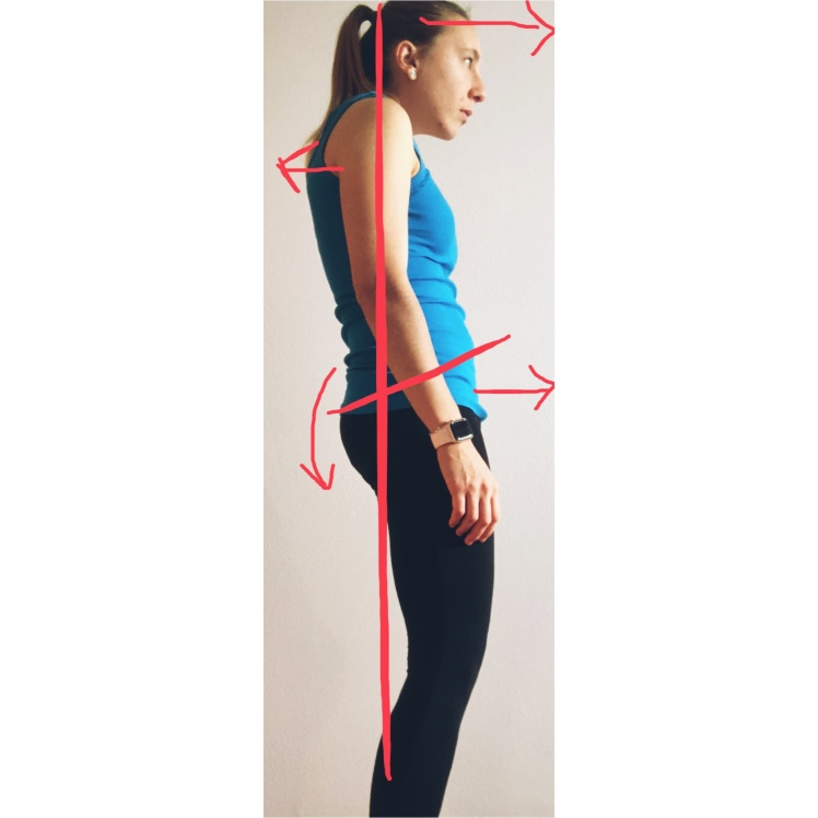 Balanced Posture, posture, bad posture, correct posture, bad posture, physiotherapy, physical therapy, fisioterapia, fisio, the physio formula, physioformula, thephysioformula, salute, health,wellbeing, fitness, wellness, postura, flat back, schiena piatta, posterior pelvic tilt, t-spine, thoracic spine, spine curvatures, sway back