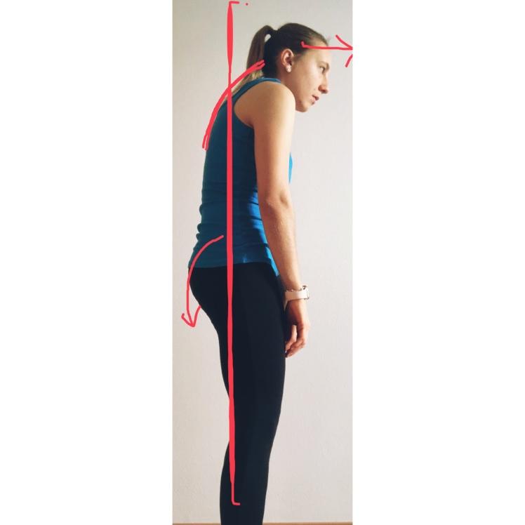 Balanced Posture, posture, bad posture, correct posture, bad posture, physiotherapy, physical therapy, fisioterapia, fisio, the physio formula, physioformula, thephysioformula, salute, health,wellbeing, fitness, wellness, postura, flat back, schiena piatta, posterior pelvic tilt, t-spine, thoracic spine, spine curvatures, kyphotic, cifotica, cifosi, kyphosis