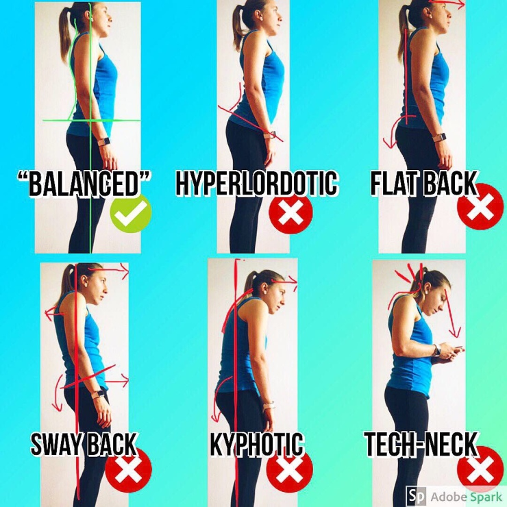 Balanced Posture, posture, bad posture, correct posture, bad posture, physiotherapy, physical therapy, fisioterapia, fisio, the physio formula, physioformula, thephysioformula, salute, health,wellbeing, fitness, wellness, postura